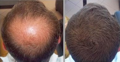 Blog Archives Hair Loss Answers