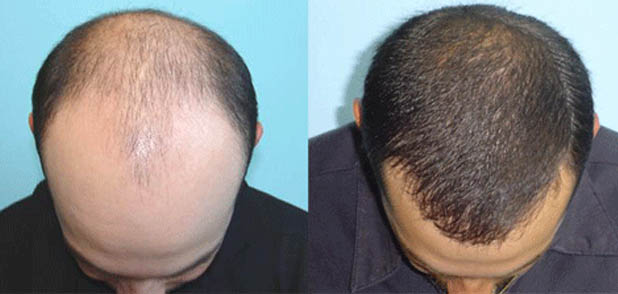 Hair Loss Prevention Natural Products