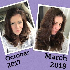 Testimonials Hair Loss Answers