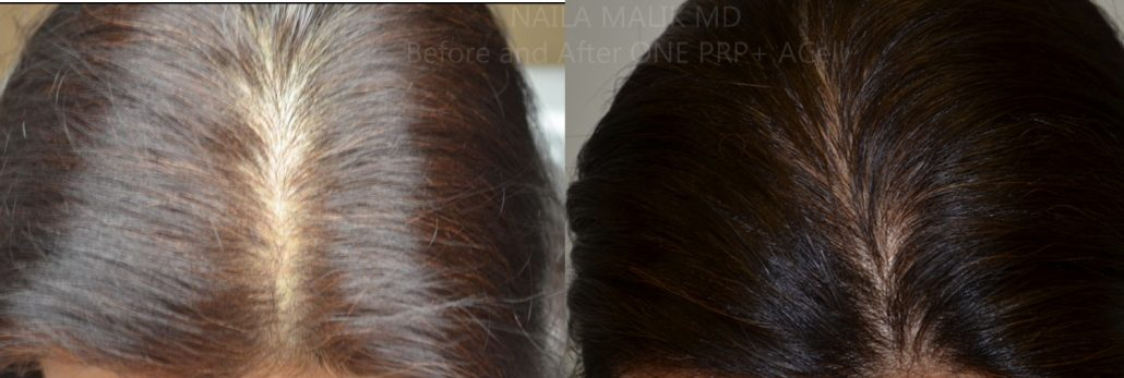 hair-regrowth-for-women